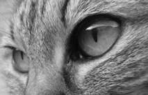脳脊髄液減少症の私の目の症状